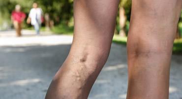 Para las pdf tratamiento varices en piernas